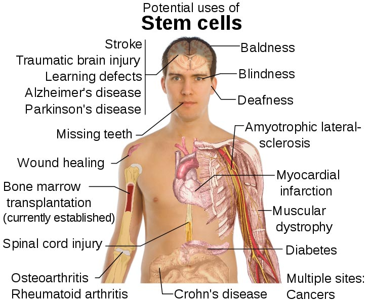 stem-cell-treatments2
